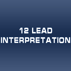 12 Lead Interpretation